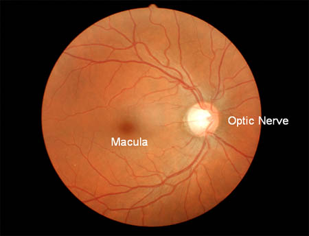 macula optic nerve